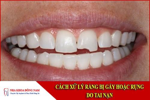 cách xử lý răng bị gãy hoặc rụng do tai nạn