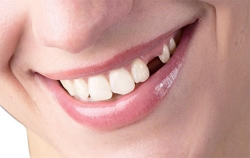 gãy gần cổ răng dưới nướu