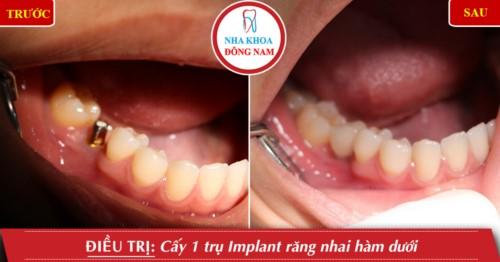 Cấy ghép Implant răng nhai hàm dưới