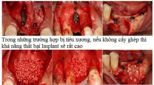 Cấy ghép xương trong cấy ghép Implant1
