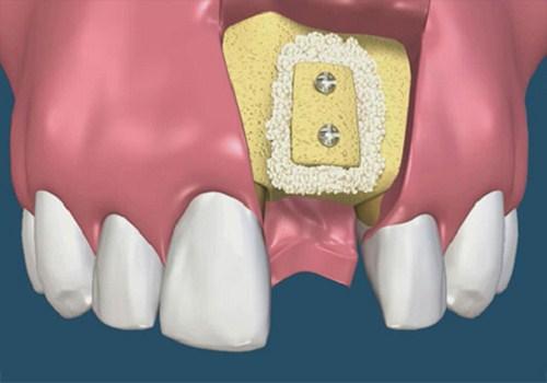 Cấy ghép xương trong cấy ghép Implant 2