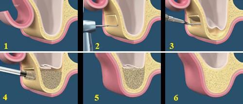 Cấy ghép xương trong cấy ghép Implant 4