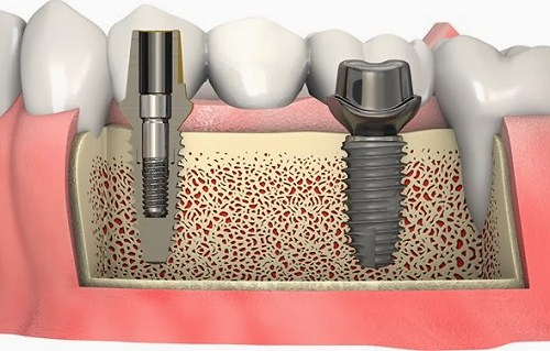 Cấy ghép xương trong cấy ghép Implant 7