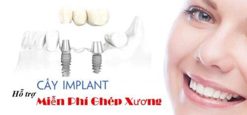 Cấy ghép xương trong cấy ghép Implant 8