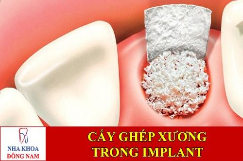 Cấy ghép xương trong cấy ghép Implant