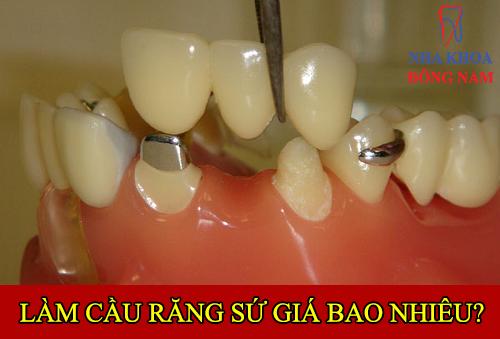 chi phí làm cầu răng sứ