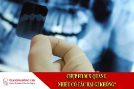 chụp film x quang có tác hại gì không