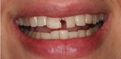 hình ảnh răng mẻ