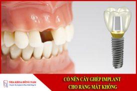 Có nên cấy ghép implant cho răng bị mất không