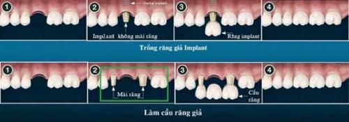 phương pháp cấy ghép implant cho răng mất