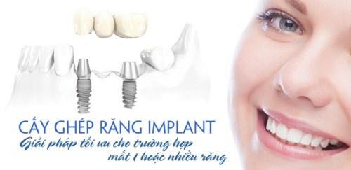 phương pháp cấy ghép implant cho răng mất 2