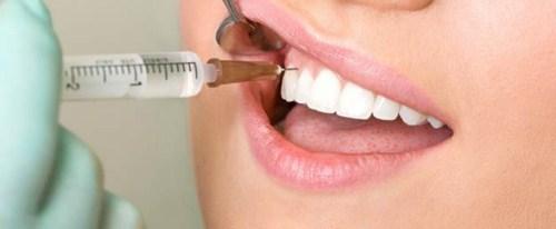 phương pháp cấy ghép implant cho răng mất 3