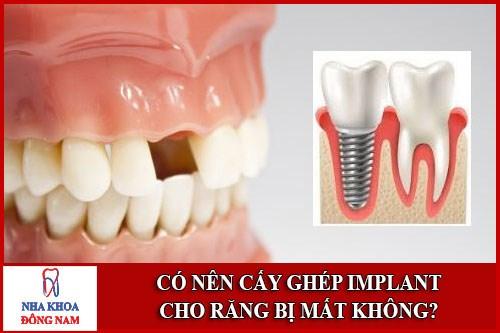 Có nên cấy ghép Implant cho răng mất không