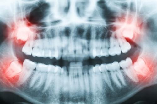 chụp phim kiểm tra tình trạng răng khôn