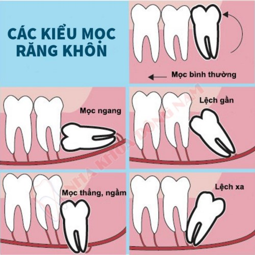 các kiểu mọc răng khôn