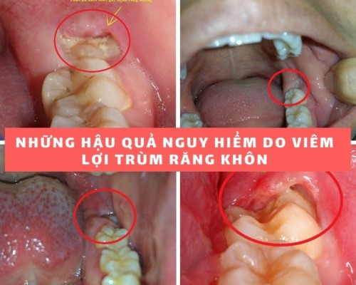 răng khôn bị lợi trùm