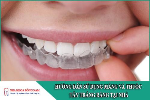 hướng dẫn cách dùng máng và thuốc tẩy trắng răng tại nhà