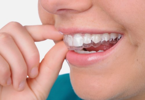 máng tẩy trắng răng