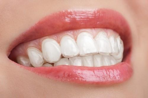 máng ngậm trắng răng tại nhà