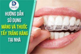 Hướng Dẫn Sử Dụng Máng Và Thuốc Tẩy Trắng Răng Tại Nhà