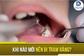 khi nào mới nên đi trám răng
