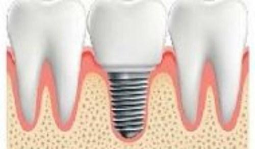 mất răng gây hóp má nên trồng răng giả loại nào-10