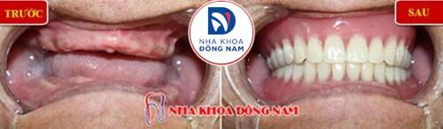 mất răng gây hóp má nên trồng răng giả loại nào-3