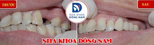mất răng gây hóp má nên trồng răng giả loại nào-4