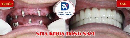 mất răng gây hóp má nên trồng răng giả loại nào-5