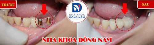 mất răng gây hóp má nên trồng răng giả loại nào-6