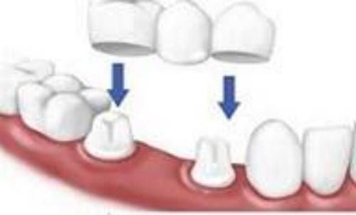 mất răng gây hóp má nên trồng răng giả loại nào-9