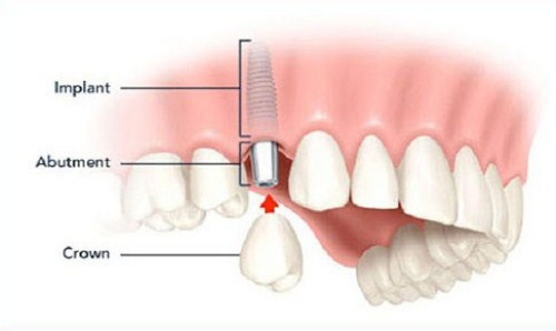 mất 2 răng có cấy ghép implant được không 1