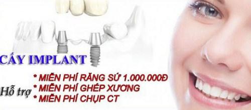 mất 2 răng có cấy ghép implant được không 5