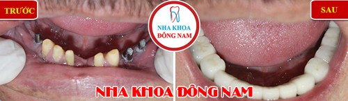 mất 2 răng có cấy ghép implant được không 6