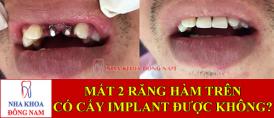 mất 2 răng có cấy ghép implant được không