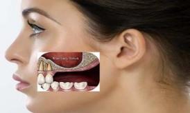 mất răng gây hóp má nên trồng răng giả loại nào