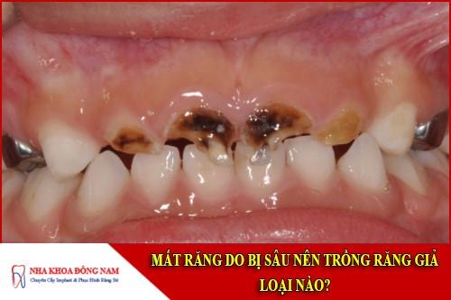 mất răng do bị sâu nên trồng răng giả loại nào