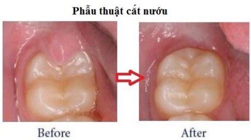 mọc răng khôn bị đau sốt mấy ngày không ăn uống được 3