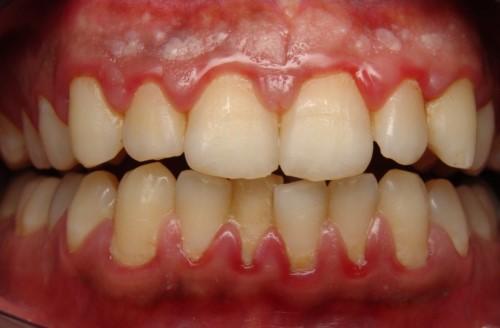 vì sao đánh răng hay bị chảy máu