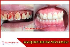 Nguyên nhân dẫn đến chãy máu răng