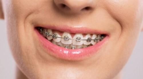 những điều cần biết trước khi niềng răng 2