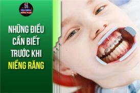 những điều cần biết trước khi niềng răng