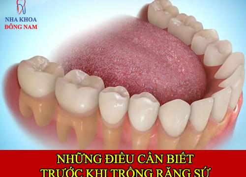 những điều cần biết về trồng răng sứ -1