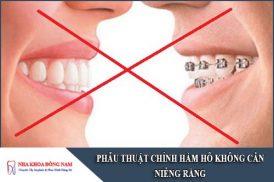 phẫu thuật chỉnh hàm hô không cần niềng răng