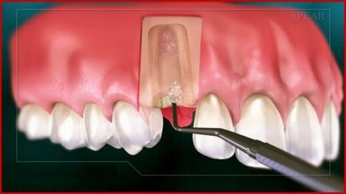 Quy trình cấy ghép implant chuẩn nhất hiện nay 15