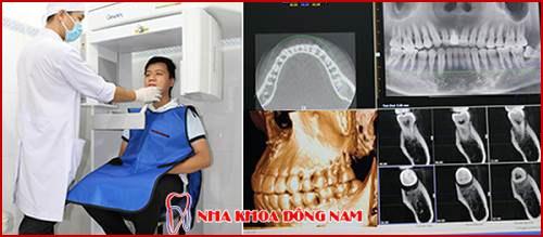 Quy trình cấy ghép implant chuẩn nhất hiện nay chụp phim CT 3d