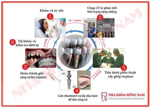 Quy trình cấy ghép implant chuẩn nhất hiện nay