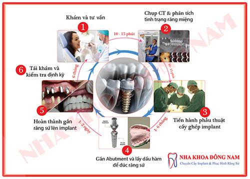 quy trình cấy ghép implant chuẩn nhất