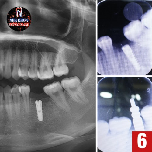 chụp film ct kiểm tra implant