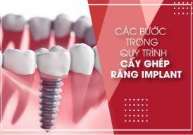 Các bước trong Quy Trình Cấy Ghép Răng Implant đầy đủ nhất